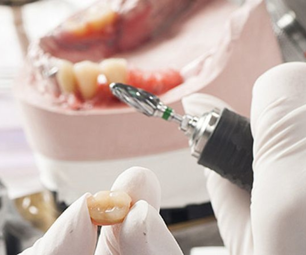 Algunas preguntas sobre los implantes dentales