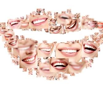Prótesis dental: Tratamientos de Vitaldent