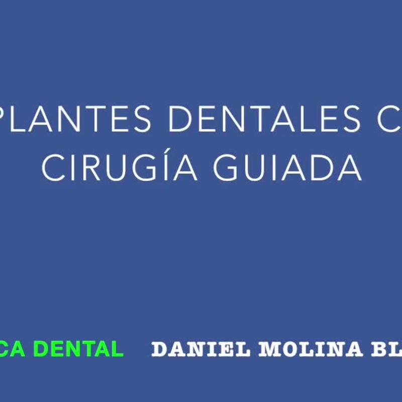 Implantes dentales: Tratamientos y tecnología de Clínica Dental Daniel Molina