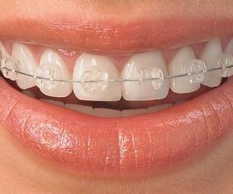Protesis removible: Tratamientos de Clínica Dental Fortaña-Giménez