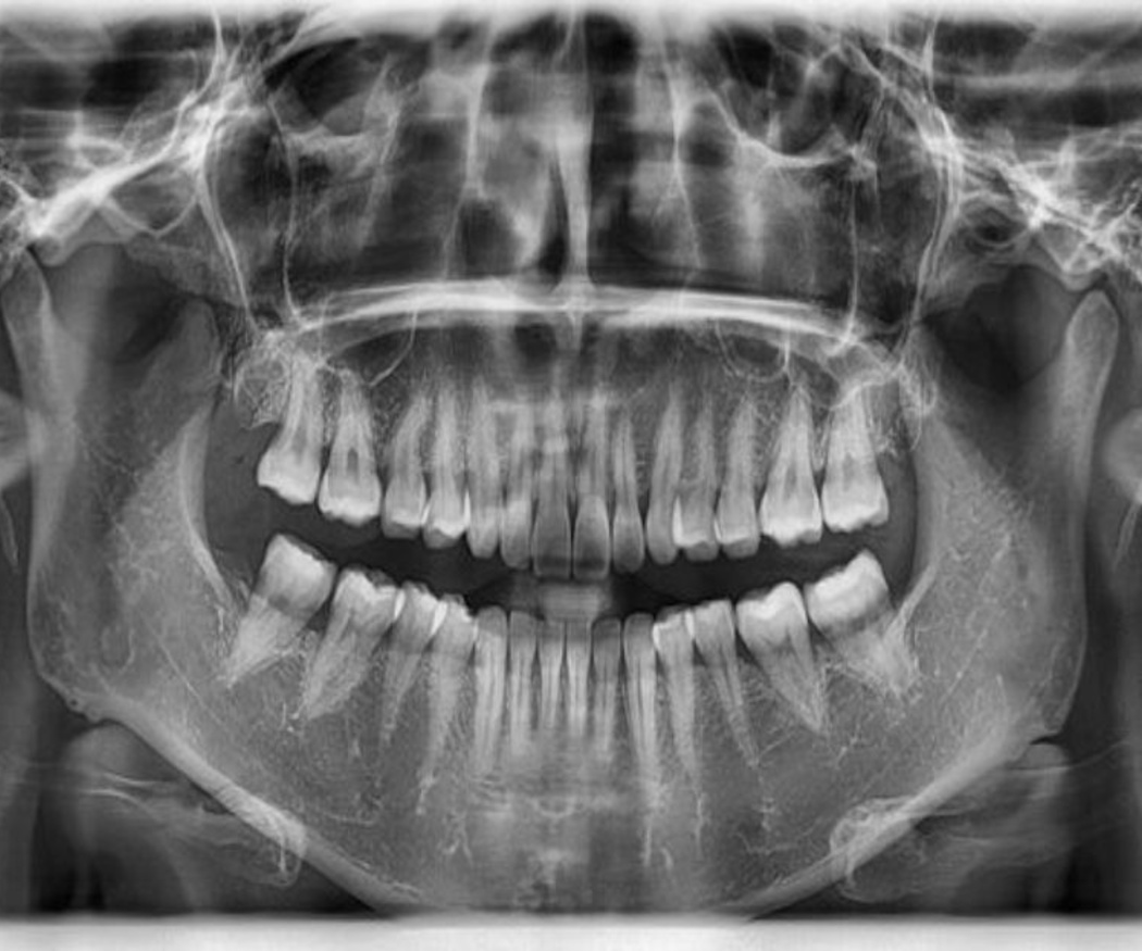 La ortopantomografía
