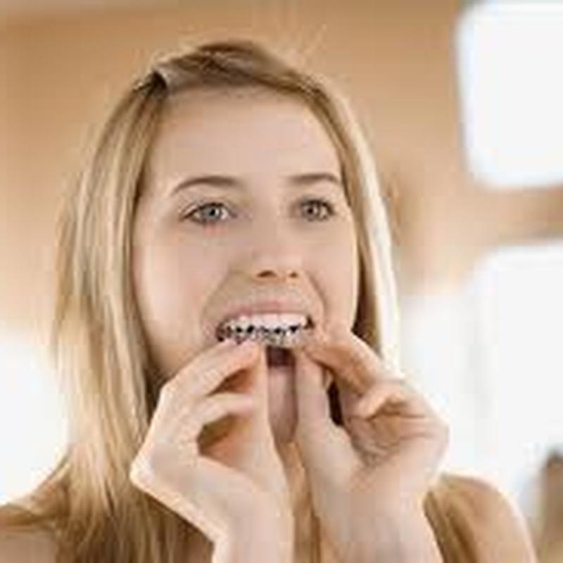 Invisalign : Servicios de Clínica Dental Box Serrano