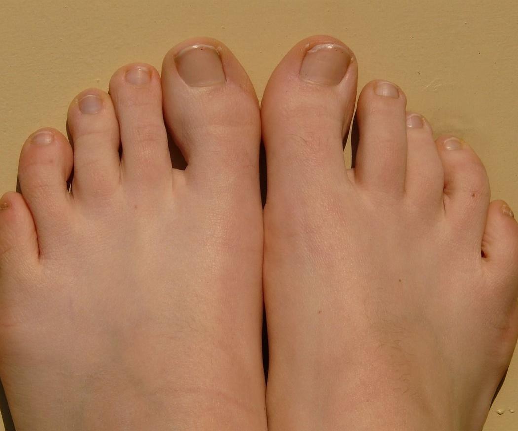 Enfermedad de las uñas: uña encarnada del pie
