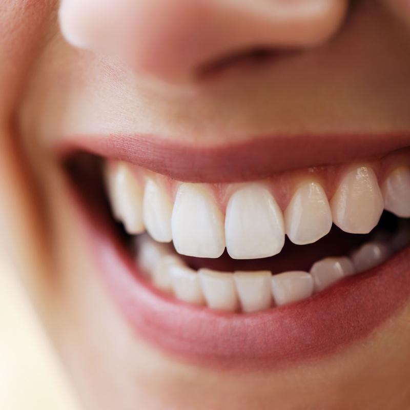 Blanqueamiento dental: Especialidades de Clínica Dental Empar Benlloch