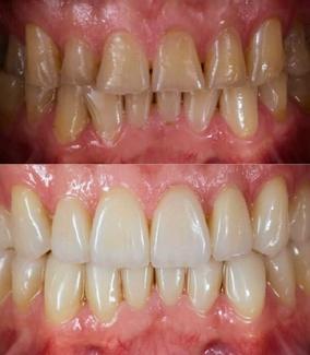 Carillas sin tallar diente