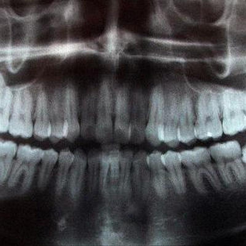 Radiología: Especialidades de Insadent - Centro Odontológico