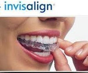 Invisaling, Ortodoncia invisible