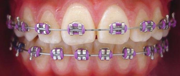 Ortodoncia infantil: Tratamientos de Maite Pérez Corrales