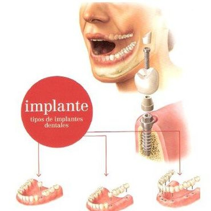 Implantes  : Servicios   de Clínica Dental Dr. Javier Pérez Martínez