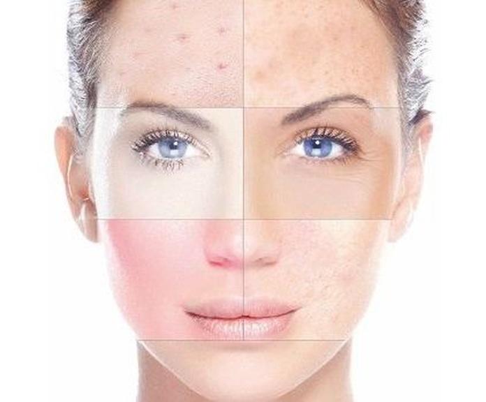 Tratamiento Facial para manchas y acné