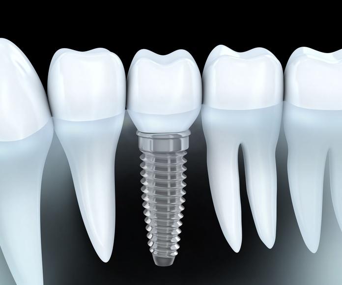 Implantes: Tratamientos de DentiVita Clínica Dental San Isidro