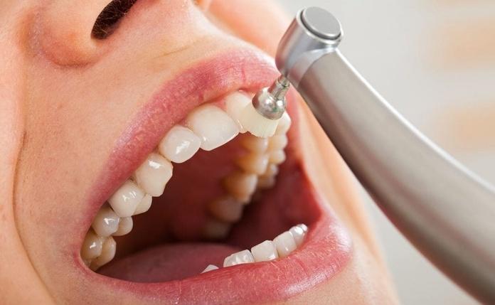 Limpieza-dental.jpg