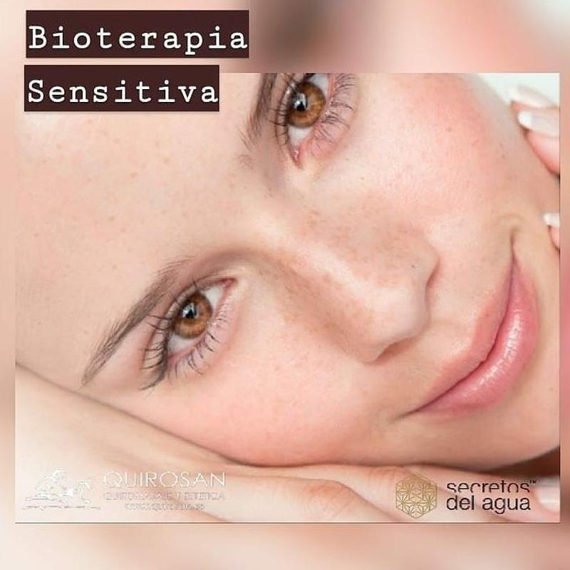 Bioterapia Facial Sensitiva: Servicios de Quirosan