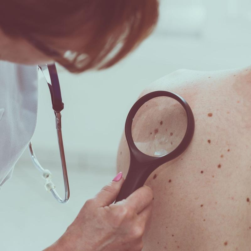 Queratosis seborreicas: Dermatología y Dermoestética de Dermatología Socorro Fierro