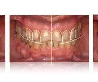 Empastes de composite : Servicios de Clínica Dental Dra. Belkys Hernández Cabrera