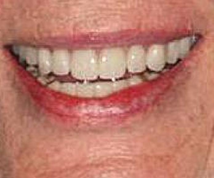 Prótesis fija: Servicios de Clínica Dental Begoña Irigaray