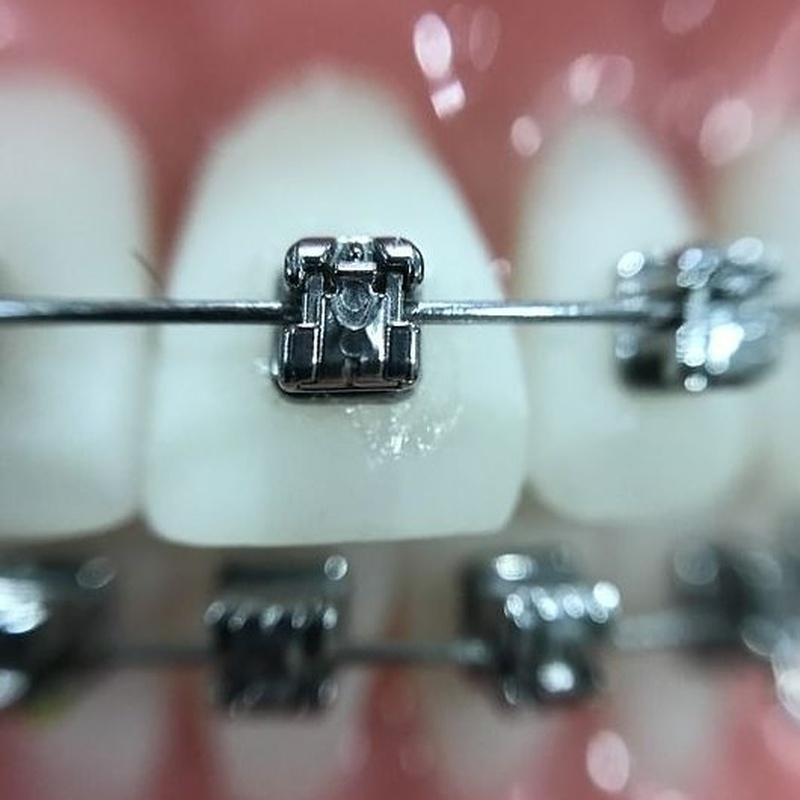 ortodoncia metálica Getafe