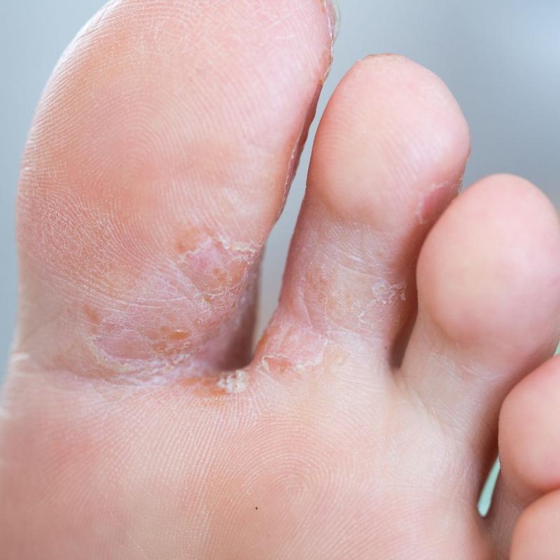 Infecciones por hongos / Candidiasis: Dermatología y Dermoestética de Dermatología Socorro Fierro