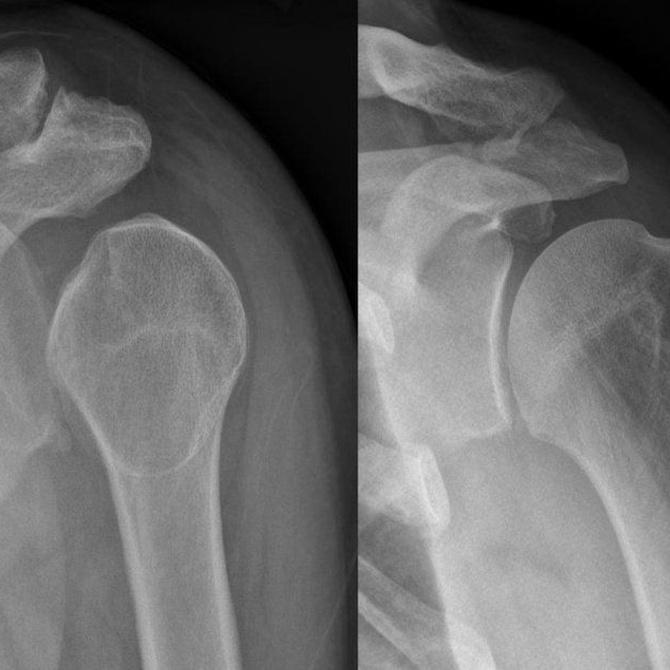 ¿Por qué es necesario hacer una radiografía antes de intervenir en una luxación?