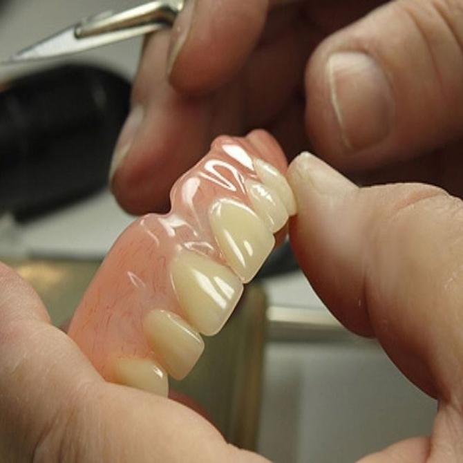 Cómo cuidar las prótesis dentales removibles