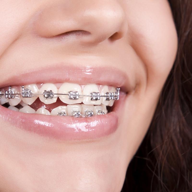 Ortodoncia convencional: Tratamientos de Centro Médico Dental Capitol