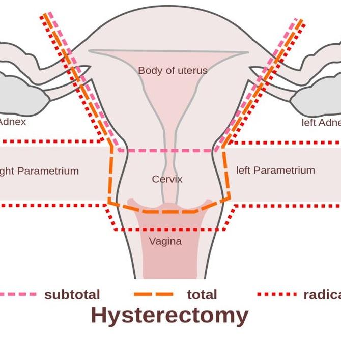 Qué es la histerectomía