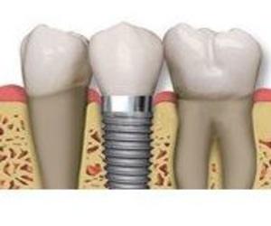 Implantología con cirugía guiada