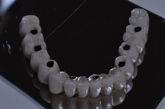 Prótesis fijas: Servicios de Atenas Laboratorio Dental