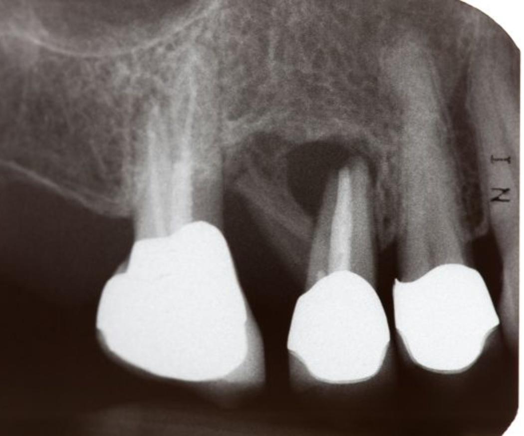 ¿Qué es la regeneración ósea?