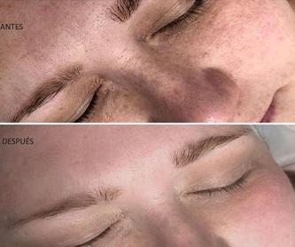 Carboxiterapia corporal: Tratamientos estéticos de Centro de Belleza Venus