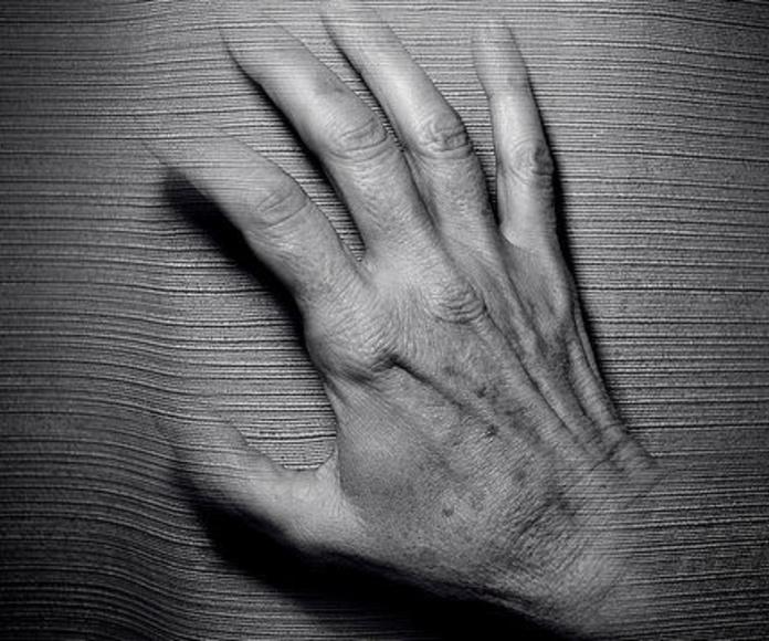 Rejuvenecimiento de las manos: Servicios de Clínica Dr. Javier Cerqueiro Cirugía Plástica