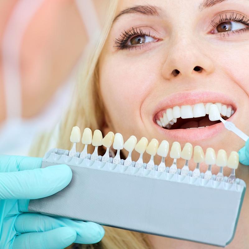 Estética dental: Tratamientos dentales de Dr. Joaquín Artigas
