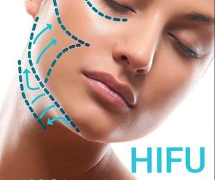 Tratamiento HIFU