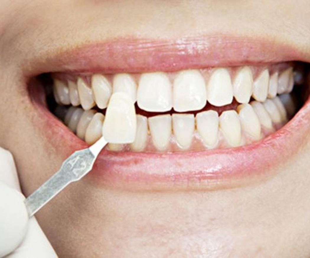 Cómo recuperar el blanco brillante en tus dientes