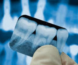 Rx dental