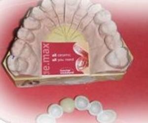 Laboratorios dentales en Madrid