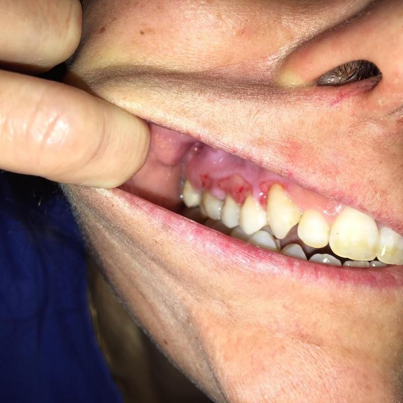 Estomatitis herpética antes de tratamiento en Clínica Dental Dr. Rafael Menéndez