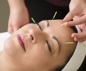 Tratamientos de acupuntura en Avilés, Asturias
