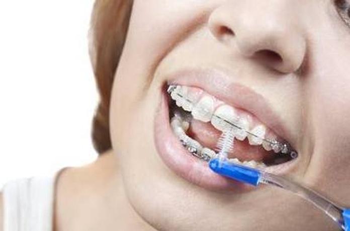 Una correcta higiene dental, clave para si ortodoncia y su salud.