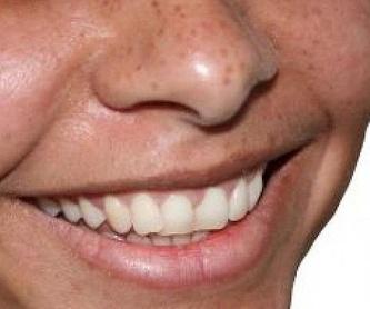 Prótesis: Tratamientos de Clínica Dental Doctor Cortés FC