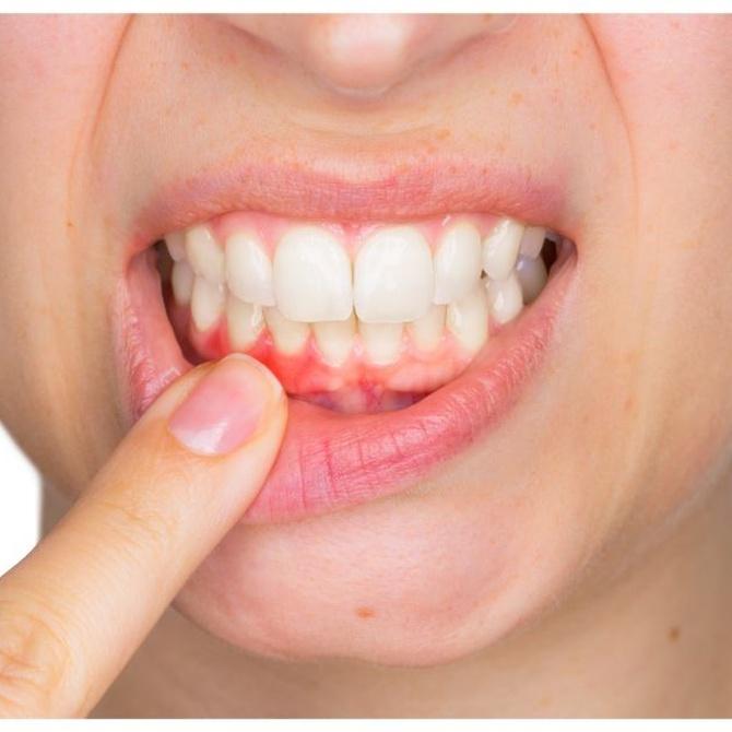 Apuntes sobre periodoncia y endodoncia