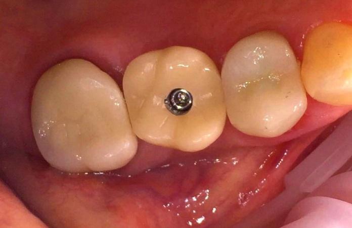 Pieza unitaria: Tratamientos dentales de Clínica Dental Dres. Nuñez García
