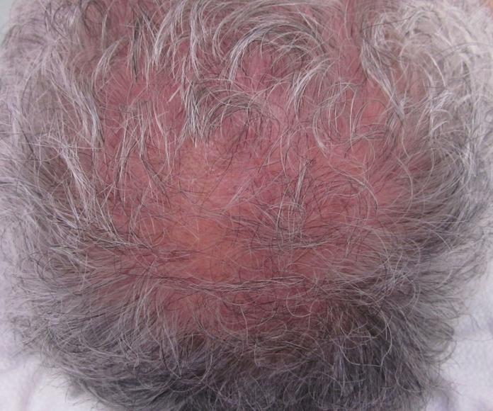 Antes del tratamiento con BIOPTRON