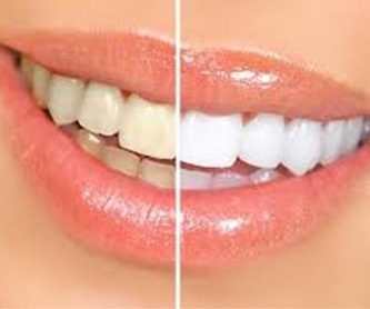 Implante dental: Tratamientos de Dental Icaria, S.L.