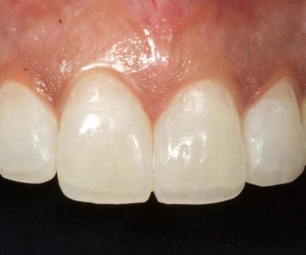 Las carillas dentales devuelven la luminosidad a una sonrisa apagada
