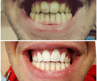 Implantes dentales: Tratamientos de Hospident Clínica Dental