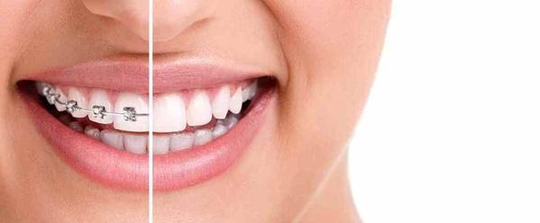 Promoción ortodoncia !!!! - 20% de descuento en Ortodoncia Fija y Removible!!!