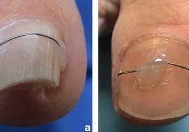 Tratamiento de uñas clavadas mediante ortonixia