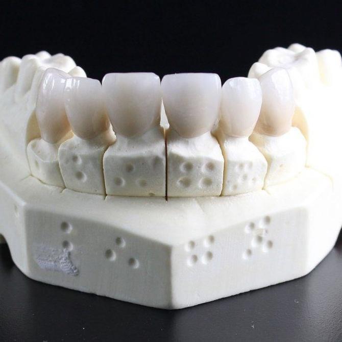 ¿Qué debemos tener en cuenta a la hora de colocar implantes dentales?