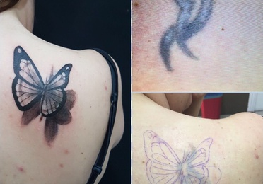 eliminacion tatuajes
